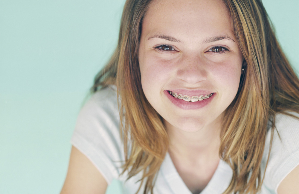 Cute young girl smiling with braces